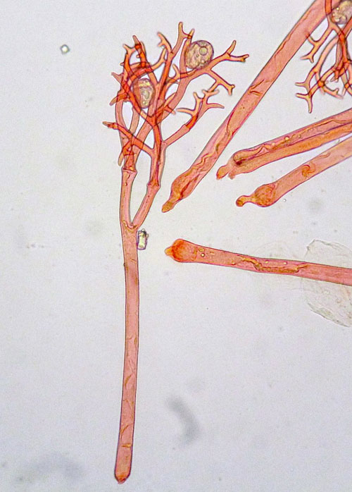 Peronospora lotorum on Lotus spec.: conidiophore