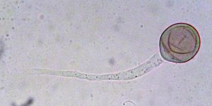 Peronospora radii: germinating conidium