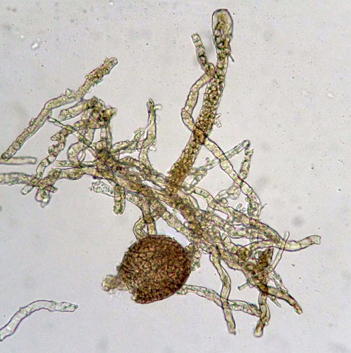 Ampelomyces quisqualis: infected hyphae and conidiophore