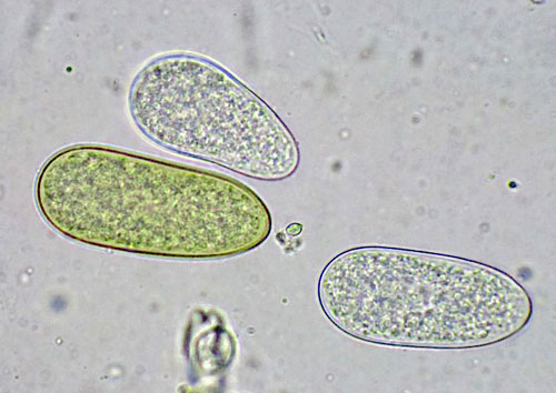 Sphaeridia visci on Viscum album: young conidia