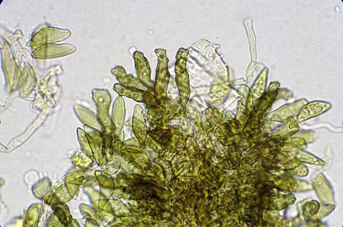 Ventura pyrina: conidia formation