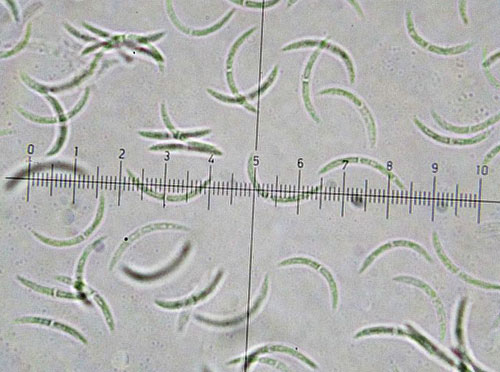 Septoria spec. on Quercus rubra: conidia