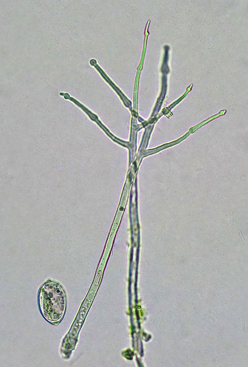 Phytophthora infestans: conidiophore