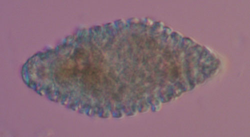 """Coleosporium tussilaginis s.l.: aeciospore: optical section"