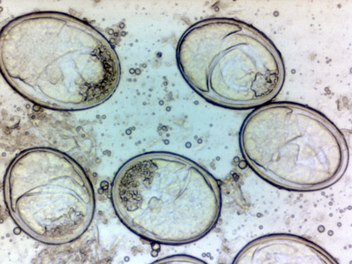 Protomyces macrosporus: ascogenous cells