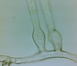 Blumeria graminis: base of conidia string