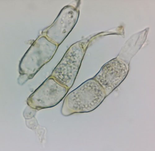 Puccinia veronicarum: teliospores (germinating)