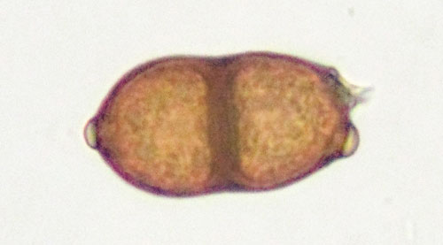 Puccinia vincae on Vinca major: teliospore