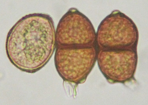 Puccinia vincae on Vinca major: uredinospore and two teliospores
