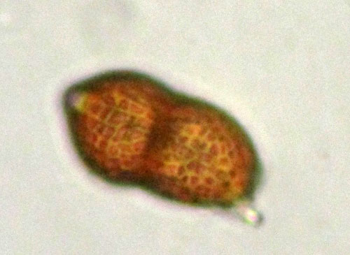 Puccinia vincae on Vinca major: teliospore, surface structure