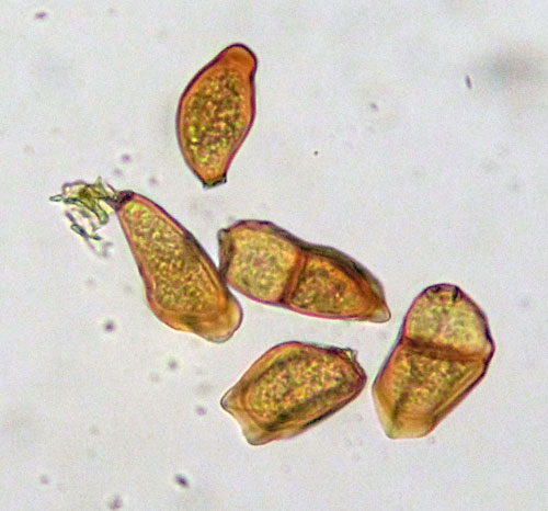 Puccinia allii: teliospores on Allum vineale