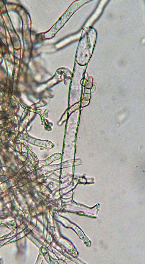 Golovinomyces ambrosiae:  conidiophore foot cell