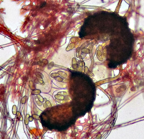 Erysiphe symphoricarpi: asci and spores