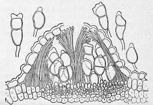 Puccinia fragosoi: telium (section)